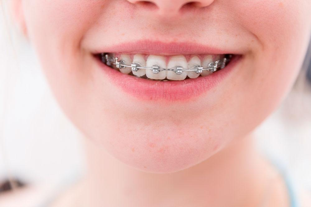 протезирование зубов в красноярске в рассрочку